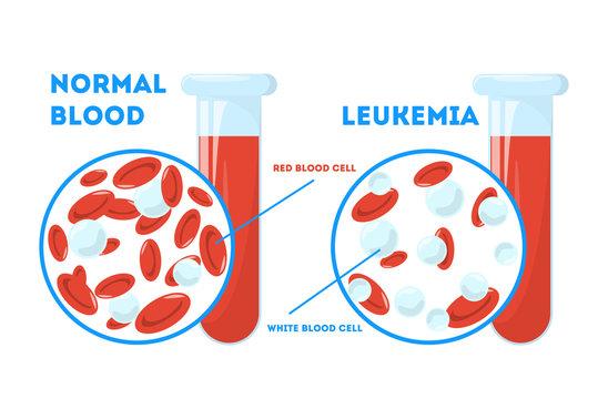 Comparison between normal blood and leukemia. Dangerous