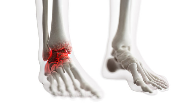 3d rendered medically accurate illustration of an arthritic ankle joint