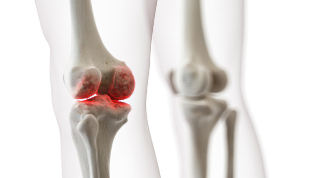 3d rendered medically accurate illustration of an arthritic knee joint