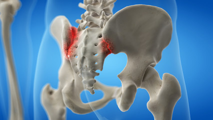 3d rendered medically accurate illustration of an arthritic iliosacral joint