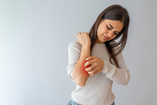 Health problem, skin diseases. Young woman scratching her itchy arm with allergy rash. Woman scratching her arm. Woman scratching arm indoors, space for text. Allergy symptoms