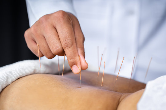 Close-up of senior female back with steel needles during procedure of acupuncture therapy