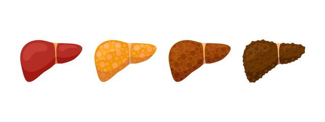 Stages human liver damage concept. Healthy liver steatosis fatty NASH fibrosis and cirrhosis. Vector cartoon reversible and irreversible condition illustration