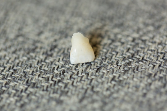 Lost Front Baby Tooth on Background