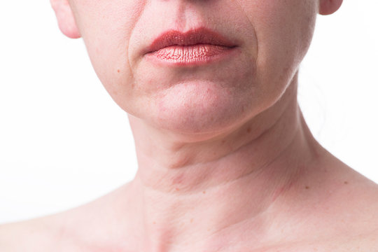 Furrowed lips of a mature woman.Signs of aging skin after 40