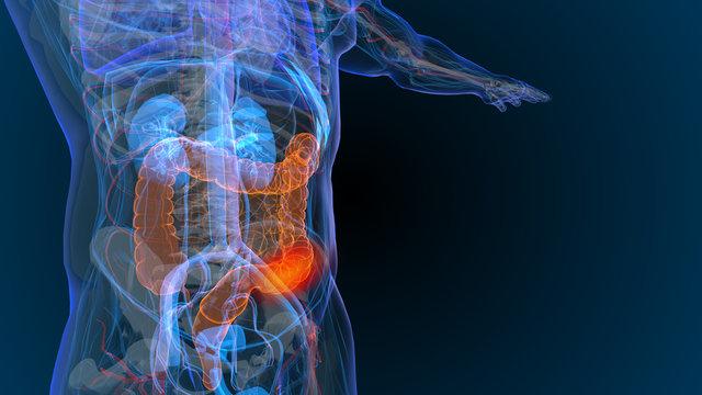 3d rendered illustration of  bowel cancer 3D illustration