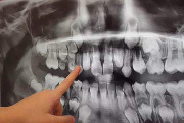 X-RAY PICTURE OF DAIRY AND NEW CHILDRENS TEETH.