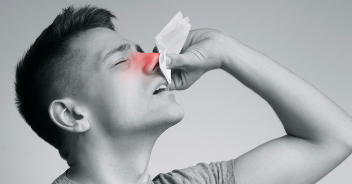Young man suffering from nasal bleeding, stop blood with tissue