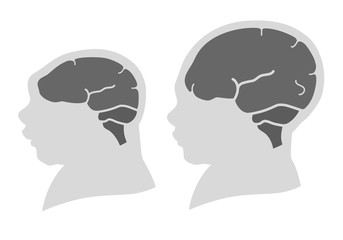 Silhouette image of the head and skull of a newborn child with a normal cranium and with microcephaly and severe microcephaly. Virus of Zika. Flat design