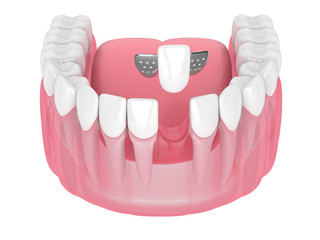 3d render of jaw with teeth and maryland bridge
