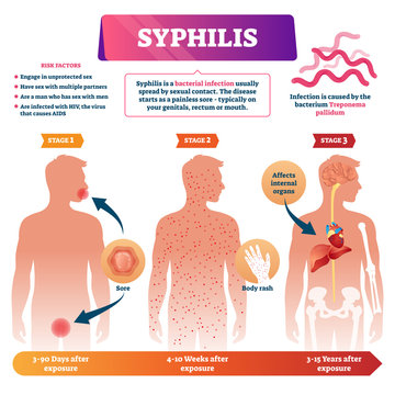 Syphilis vector illustration. Labeled sexual infection explanation scheme.