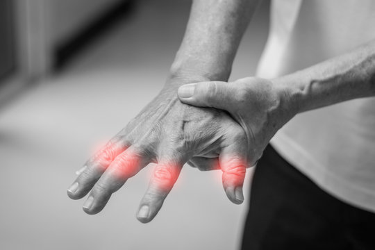 Tendinitis Overuse hand problems. Old man hand with red spot o fingers as suffer from Carpal tunnel syndrome. The symptoms of tingling, numbness, weakness, or pain of the fingers and wrist.