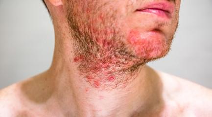 Detail of man's chin with seborrheic dermatitis in the beard area