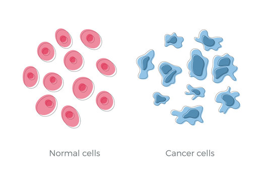cell structure: normal and cancer