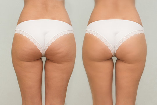 Female buttocks before and after treatment comparison