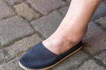 Geschwollenes Bein einer Frau mit Wassereinlagerungen