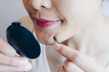 Search photos acne