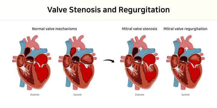 valve stenosis and regurgitation. valvular heart disease