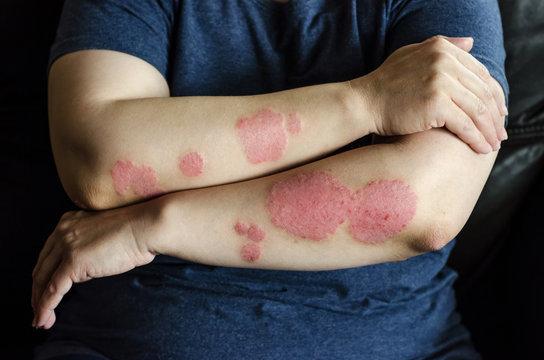 Dermatological skin disease. psoriasis, eczema, dermatitis, allergies. Skin lesions on the elbows.