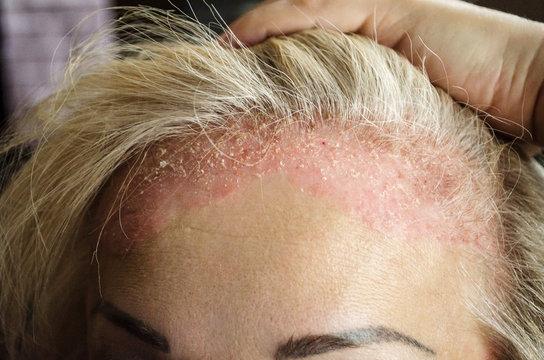 Dermatological skin disease. psoriasis, eczema, dermatitis, allergies. Skin lesions on the head.