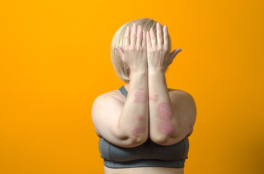 Dermatological skin disease. psoriasis, eczema, dermatitis, allergies. Skin lesions on the elbows.