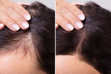 Before And After Hair Loss Treatment Fotobehang