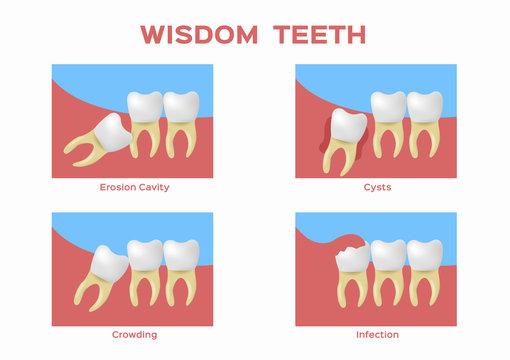 wisdom teeth vector