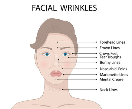 Illustration of Common Types of Facial Wrinkles, cosmetic surgery, woman facial treatment concept
