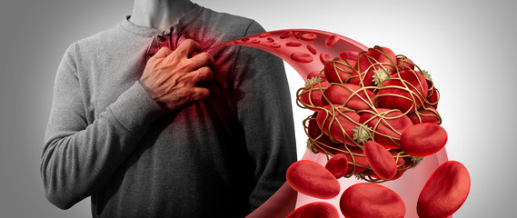 Blood Clot Health Risk