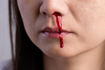 Nosebleed , a young woman with a bloody nose. Healthcare and medical concept.
