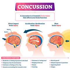 Concussion vector illustration. Labeled educational post head trauma scheme