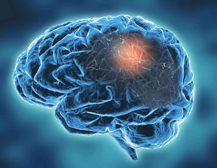 Neurodegenerative disease concept illustration with neural networks.