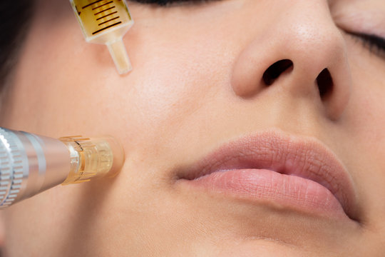 Macro detail of micro needle cosmetic treatment on female cheek.