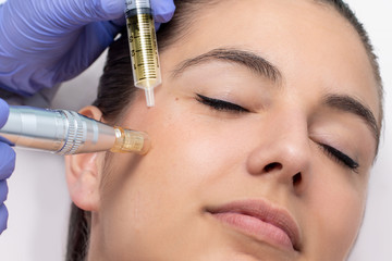 Woman having derma pen facial treatment.