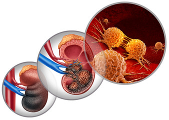 Kidney Cancer Disease