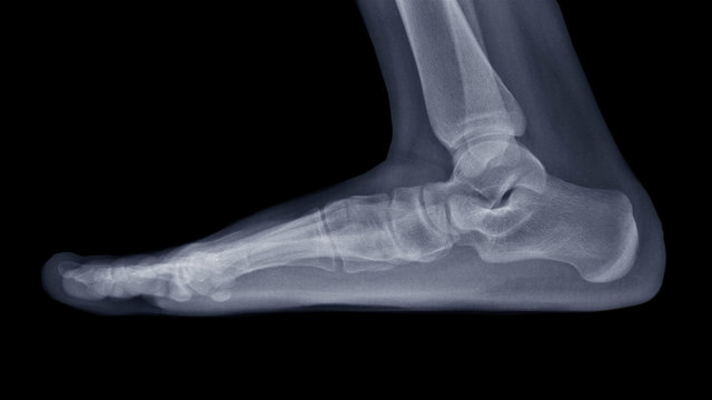 Film X-ray foot radiograph show Flat foot deformity (pes planus or fallen arches) and abnormal union of tarsal bone( Calcaneonavicular coalition). The patient has foot,ankle pain ankle problem