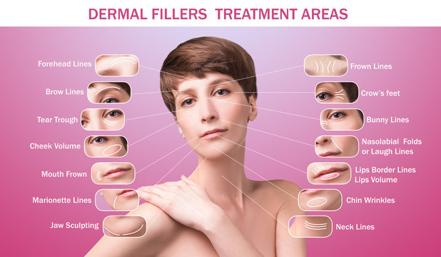 Treatment areas for anti-wrinkle injection.