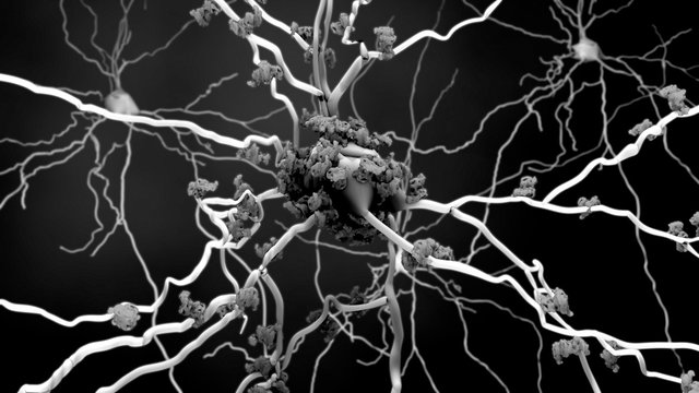 Death of neurons in the aging brain or Proteins in neurons