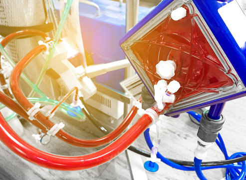 Extracorporeal membrane oxygenation (ECMO) in Seriously ill patients in intensive care unit with a artificial blood circulation apparatus,Blurry image.