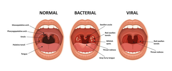 Tonsillitis bacterial and viral. Angina, pharyngitis and tonsillitis. Infection of tonsils. Open mouth