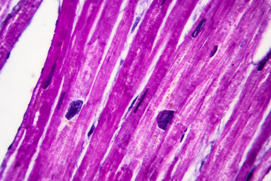 Heart hypertrophy, histopathology. Photomicrograph showing hypertrophic myocardium with thick muscle fibers and enlarged and dark nuclei. High magnification