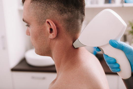 Cropped shot of a man getting laser hair removal treatment at beauty clinic. Beautician removing excessive hair on the back of the neck of a male client