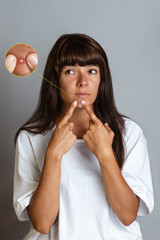 Acne and cosmetology. A tanned young woman squeezes a pimple on her face. Enlarged picture of a pimple. Vertical orientation