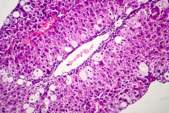Histopathology of acute hepatitis, light micrograph, photo under microscope