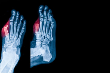 X-ray image of foot show diabetic wound infected to big toe bone cause to Toe amputation in Diabetes patient. Medical health care concepts.