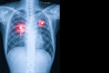 X-ray image of lung cancer show in red mark in picture with copy space.