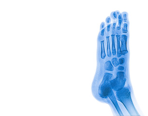 X-ray image of child foot with copy space for medical and health care concepts.