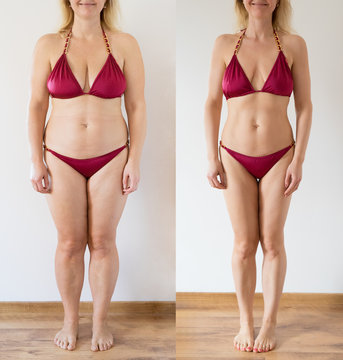 Real photo of woman before and after weight loss