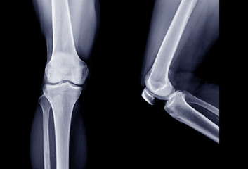 X-ray image of Right knee joint  AP view and Lateral view. knee x-ray.