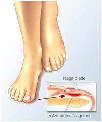 Nagelbettentzündung